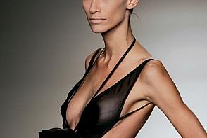 Anorexia, obsesia pentru silueta. Cat de grava este boala?