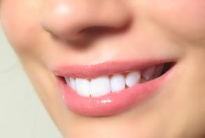 Igiena orala eficienta, zambet stralucitor