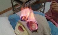 Arde, ustura si te intinereste! Vezi noul secret al frumusetii: tratamentul cu foc - VIDEO