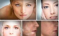 Tot ce trebuie sa stii despre vitiligo: boala care duce la depigmentarea pielii