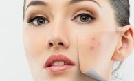 Cum sa tratezi acneea pas cu pas. Ce trebuie sa faci ca sa scapi definitiv de cosuri