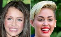 Cum aratau vedetele inainte sa-si faca dintii. Vezi si tu cat de mult s-au schimbat - FOTO