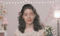 Cand avea 17 ani a fost arsa cu acid sulfuric si chipul ei s-a transfomat complet. Acum a primit cea mai frumoasa veste - FOTO