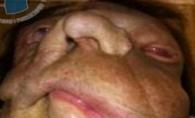Era cea mai monstruoasa femeie. Vezi cum arata tanara dupa ce a supusa unui transplant facial - FOTO