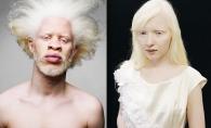Albinismul i-a ajutat sa-si urmeze visul! Aceste modele au devenit celebre datorita frumusetii lor fascinante - GALERIE FOTO