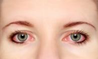 Afla de ce ni se inrosesc ochii. Poate fi semn al unei boli grave