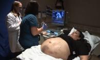 Burtica de gravida era plina de vanatai. Ce au descoperit doctorii cand i-au facut ecografie - FOTO