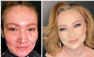 Transformare incredibila. Ea este make-up artistul magician, care face ca acneea severa sa dispara ca prin minune - VIDEO
