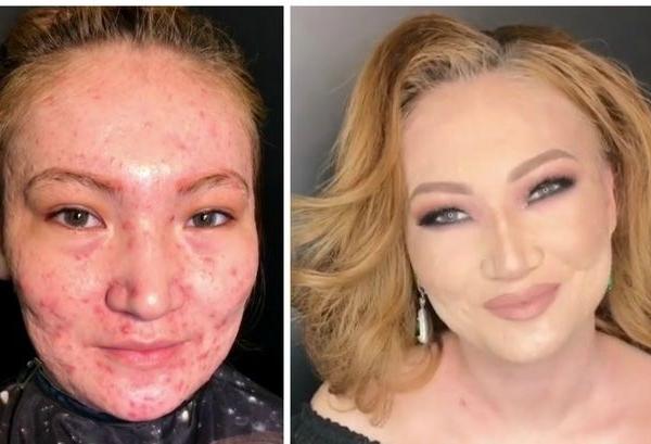 Transformare incredibila. Ea este make-up artistul magician, care face ca acneea severa sa dispara ca prin minune - VIDEO