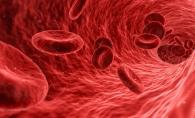 Remediul naturist care controleaza presiunea arteriala! Afla cum poti sa-l prepari - FOTO
