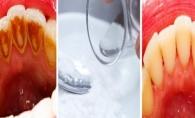 Elimina tartrul dintre dinti chiar la tine acasa! Iata cea mai ieftina alternativa