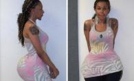 O femeie din SUA a primit 10 ani de inchisoare pentru ca facea implanturi fesiere ucigase. Cu ce isi injecta clientele