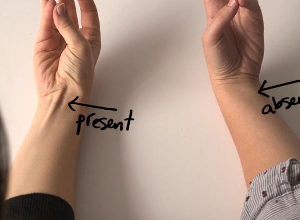 La unii oameni se vede, la altii nu. Ce inseamna cand tendonul de pe mana e mai proeminent - VIDEO