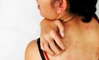 Eruptii si mancarimi la nivelul pielii? Mergi imediat la medic daca ai observat asta, dupa ce ai stat la soare - FOTO