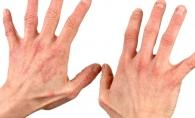 Ce este psoriazisul? Afla care sunt cauzele, tipurile si tratamentul acestei boli - FOTO