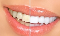 Ghidul albirii dentare. Iata cu ce recomandari vine un specialist in domeniu - FOTO