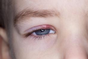 Infectia la ochi sau ulciorul. Care sunt cauzele si cum se trateaza acesta - FOTO