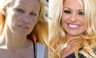 Sex simbolul Pamela Anderson a decazut la maxim. Diva s-a ingrasat si are o groaza de cicatrici de la operatiile estetice - FOTO