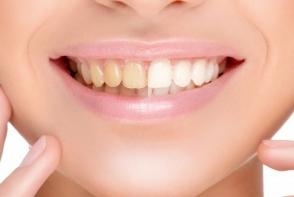 Vrei dinti mai albi si fara pete? Urmeaza acesti 6 pasi pentru a avea un zambet de milioane - FOTO