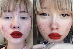 Cel mai nou trend pe instagram: utilizatorii isi arata acneea fara retusuri. Ai curajul?