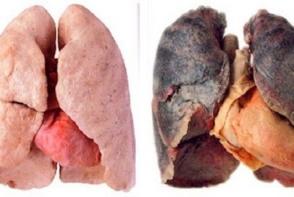 Imagini socante arata diferenta dintre plamanii unui fumator si al unui nefumator. O sa arunci imediat tigarile la gunoi - VIDEO