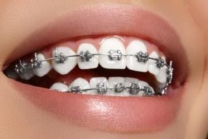 Aparatele dentare pot provoca leziuni minore ale mucoasei gurii. Iata cum sa le tratezi rapid - FOTO